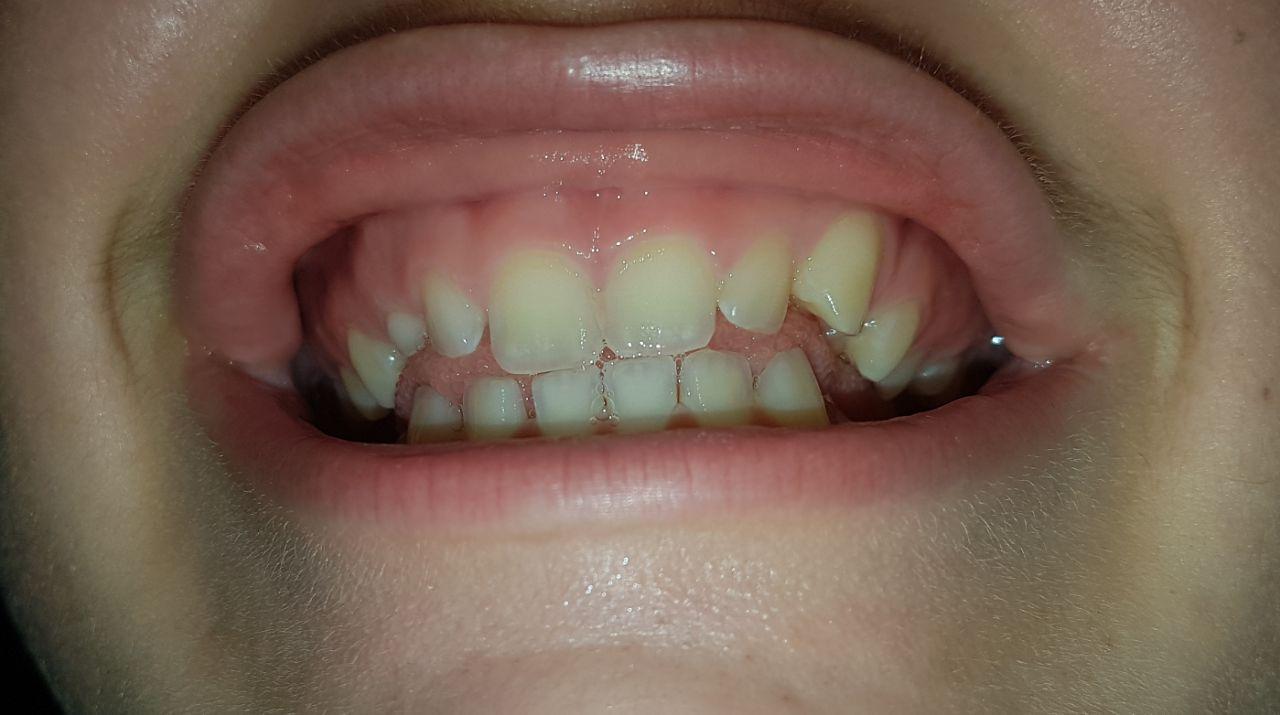 Wie lange Zahnspange für diese Zähne?
