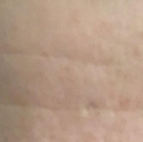 Foto der offenen Poren - (Haut, Gesicht, schwarz)