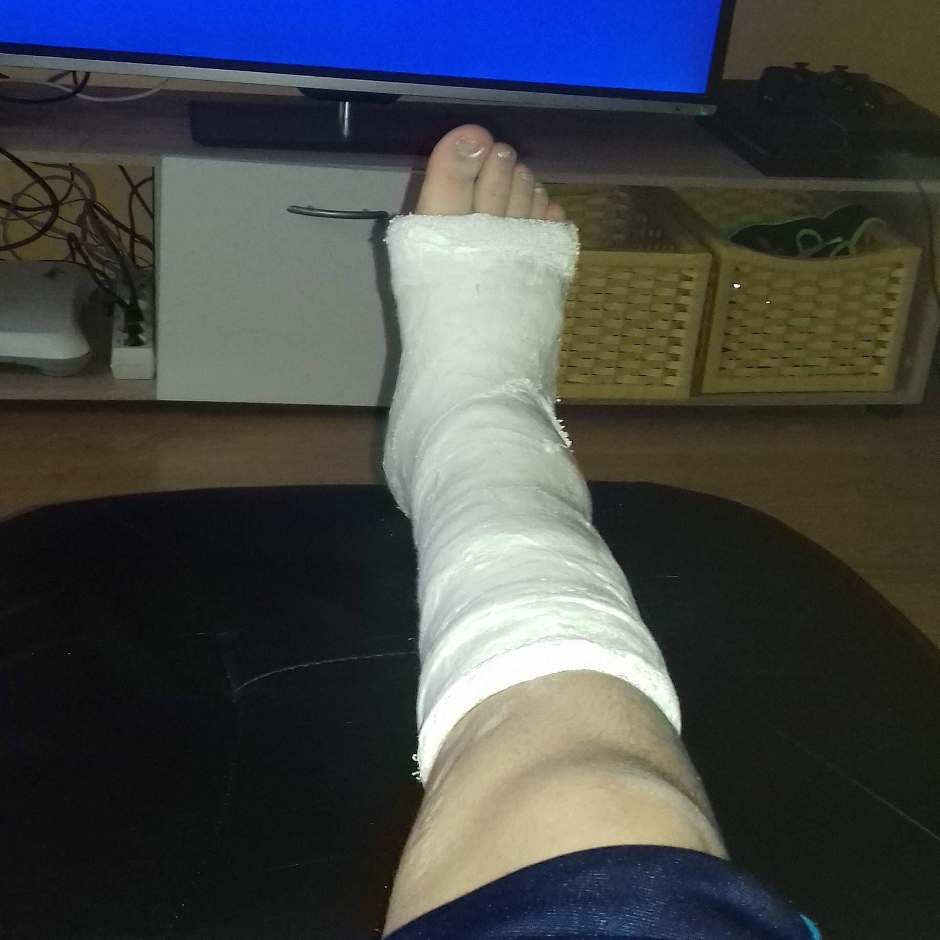Bein gebrochen gips