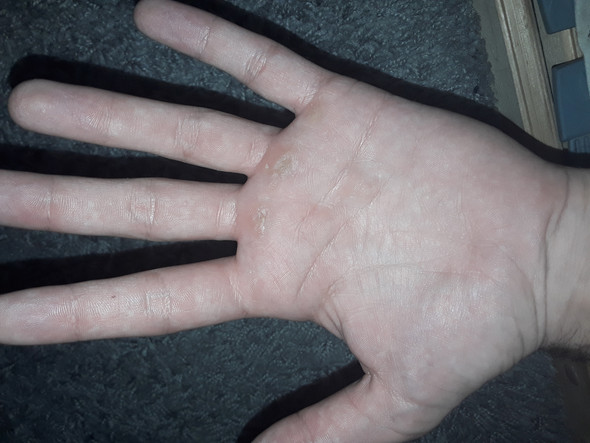 Wie nennt man diese Handschuhe damit man keine Hornhaut kriegt?