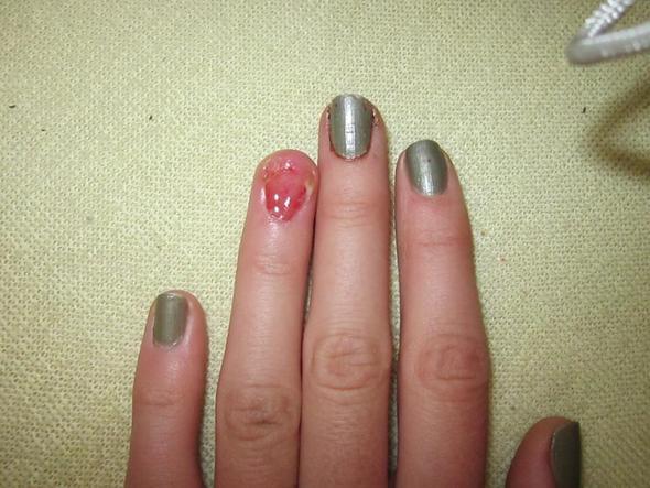 Die Merkmale gribka der Nägel und der Folge