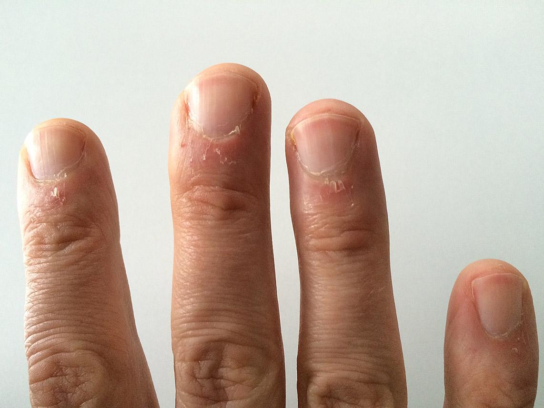 Gribok der Nägel als das Wasserstoffperoxid zu behandeln
