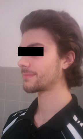 Seitenansicht - (Haare, Mode, Frisur)