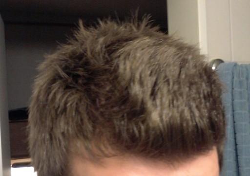 Trockene haare bei mannern