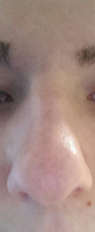 Nase2 - (Frauen, Aussehen, Nase)