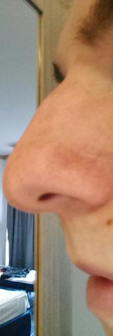 Nase3 - (Frauen, Aussehen, Nase)