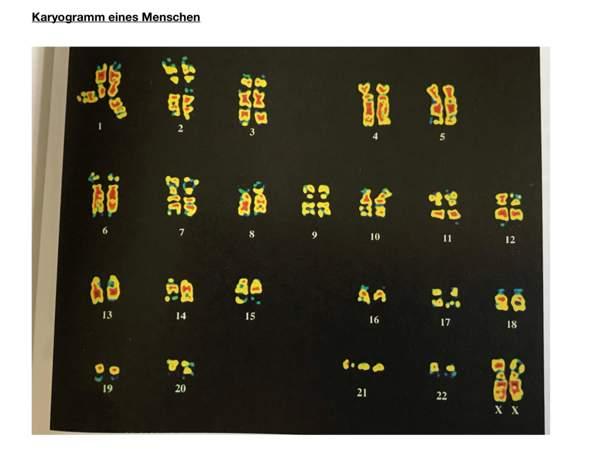 Wie unterscheidet sich dieses Karyogramm von anderen?