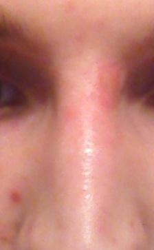 Nase - (Haut, Pickel, Kosmetik)