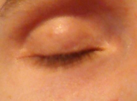 Augenringe - (Haut, Pickel, Kosmetik)