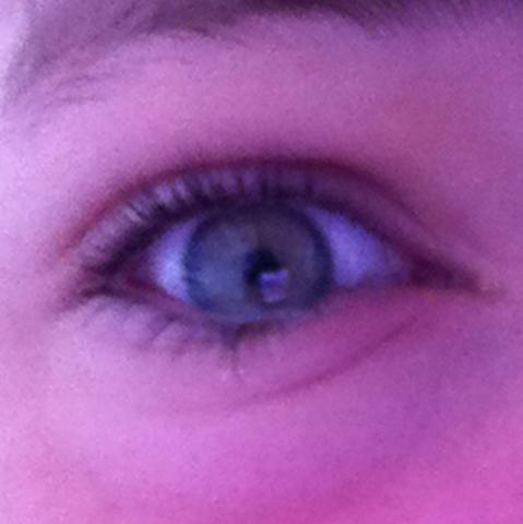 Das Auge mit dem Gerstenkorn  - (Gesundheit, Augen, Gerstenkorn)