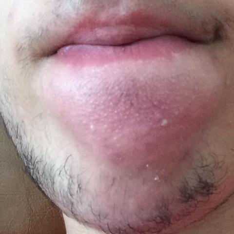 Kinn herpes am Herpes am
