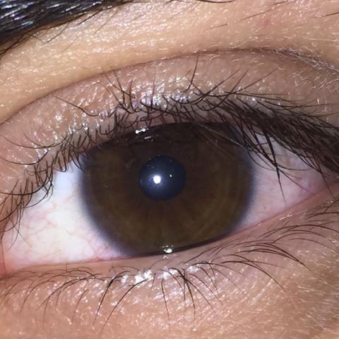 Um iris ring dunkler die Iris weiß