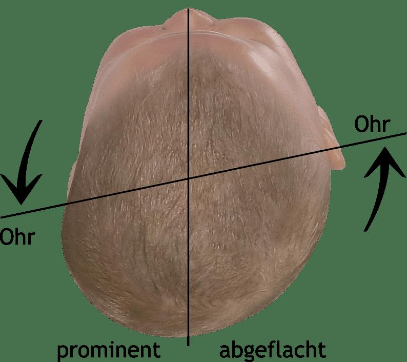 Saugglocke Kopf Verformt