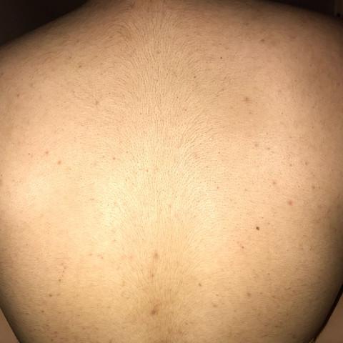 Rücken - (Gesundheit und Medizin, Gesundheit, Ernährung)