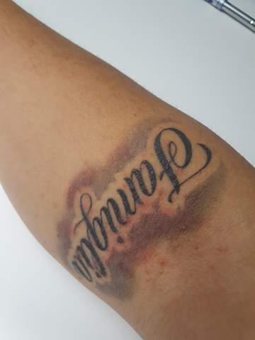 Wieso ist mein Tattoo noch rot?