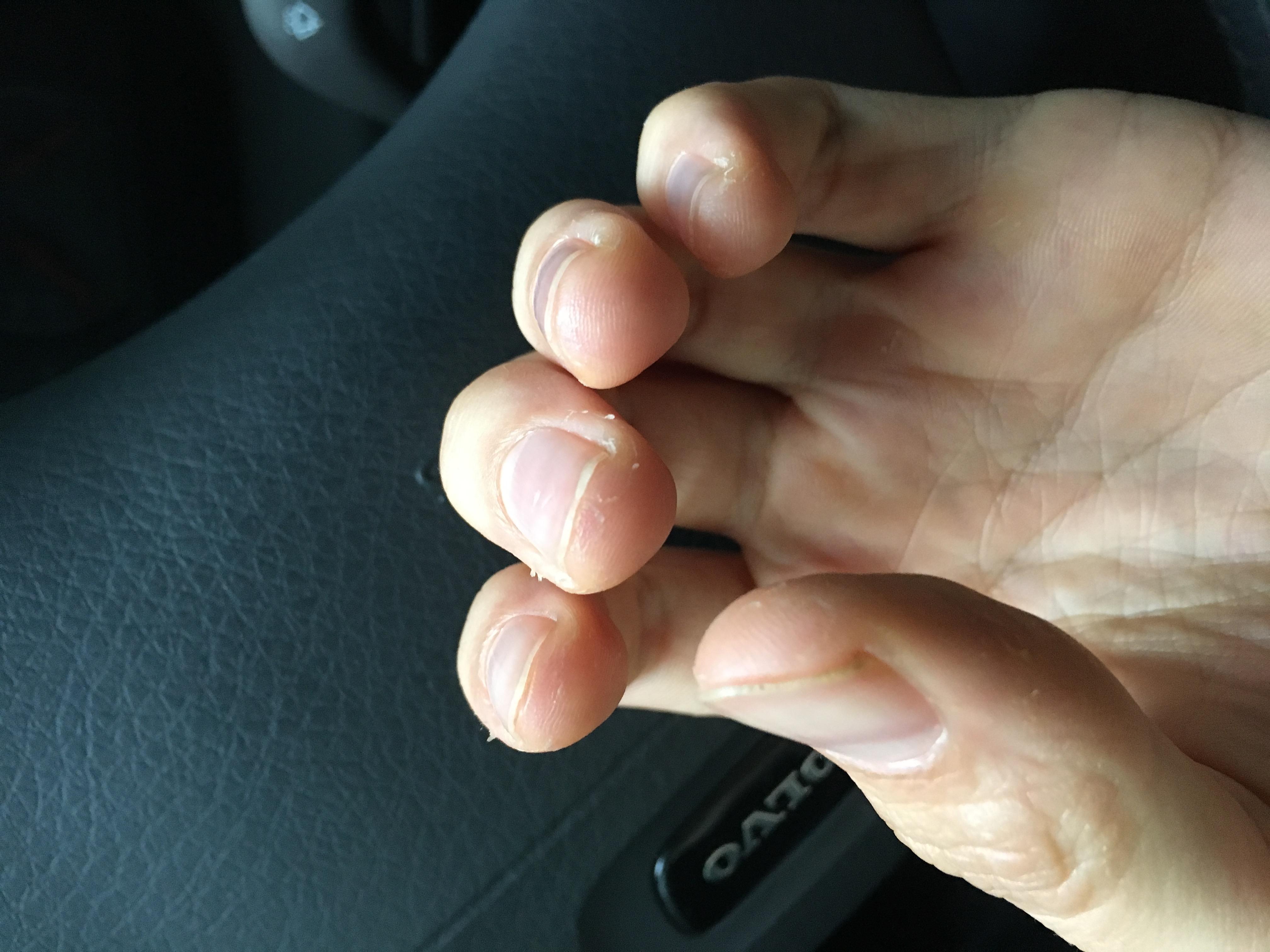 Wieso schält sich die Haut an meinen Händen? (Gesundheit