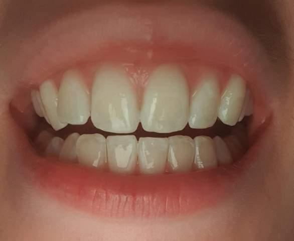 Wieso sieht man, wo die Zahnspange gesessen hat?