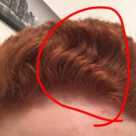Wirbel Im Haar Was Soll Ich Tun Haare Frisur