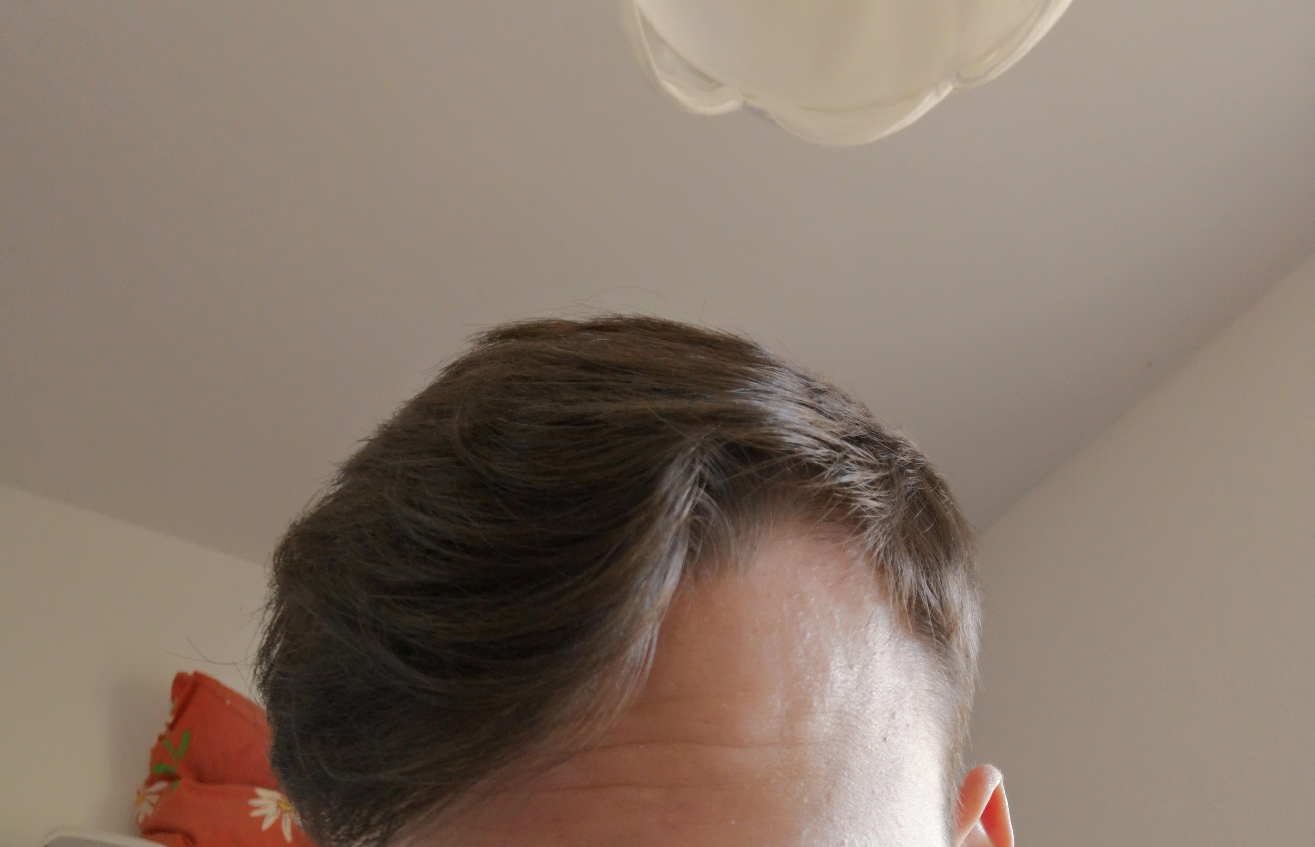 Wirbel Vorne Wegbekommen Haare Frisur