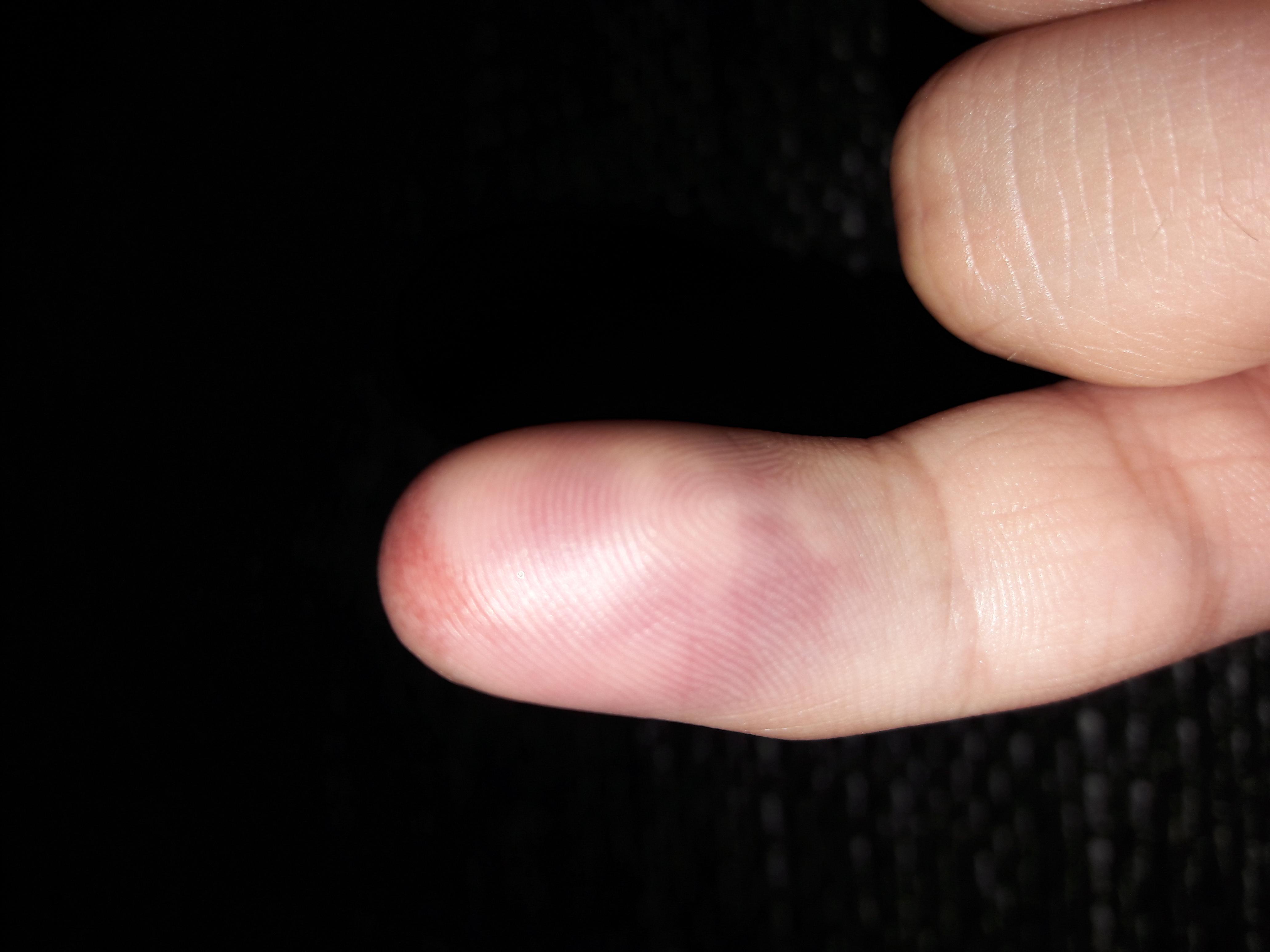 Wird dieser Nagel abfallen? (Medizin, Verletzung, Nägel)