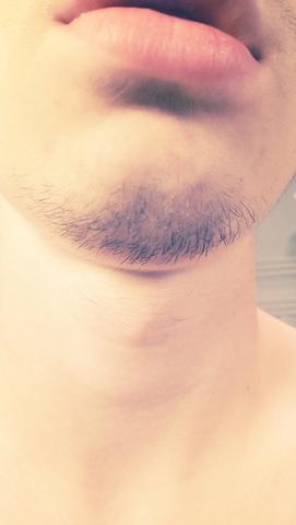 Kinnbart - (Haare, Männer, Gesicht)