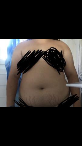 40 kg abnehmen ohne hängende haut