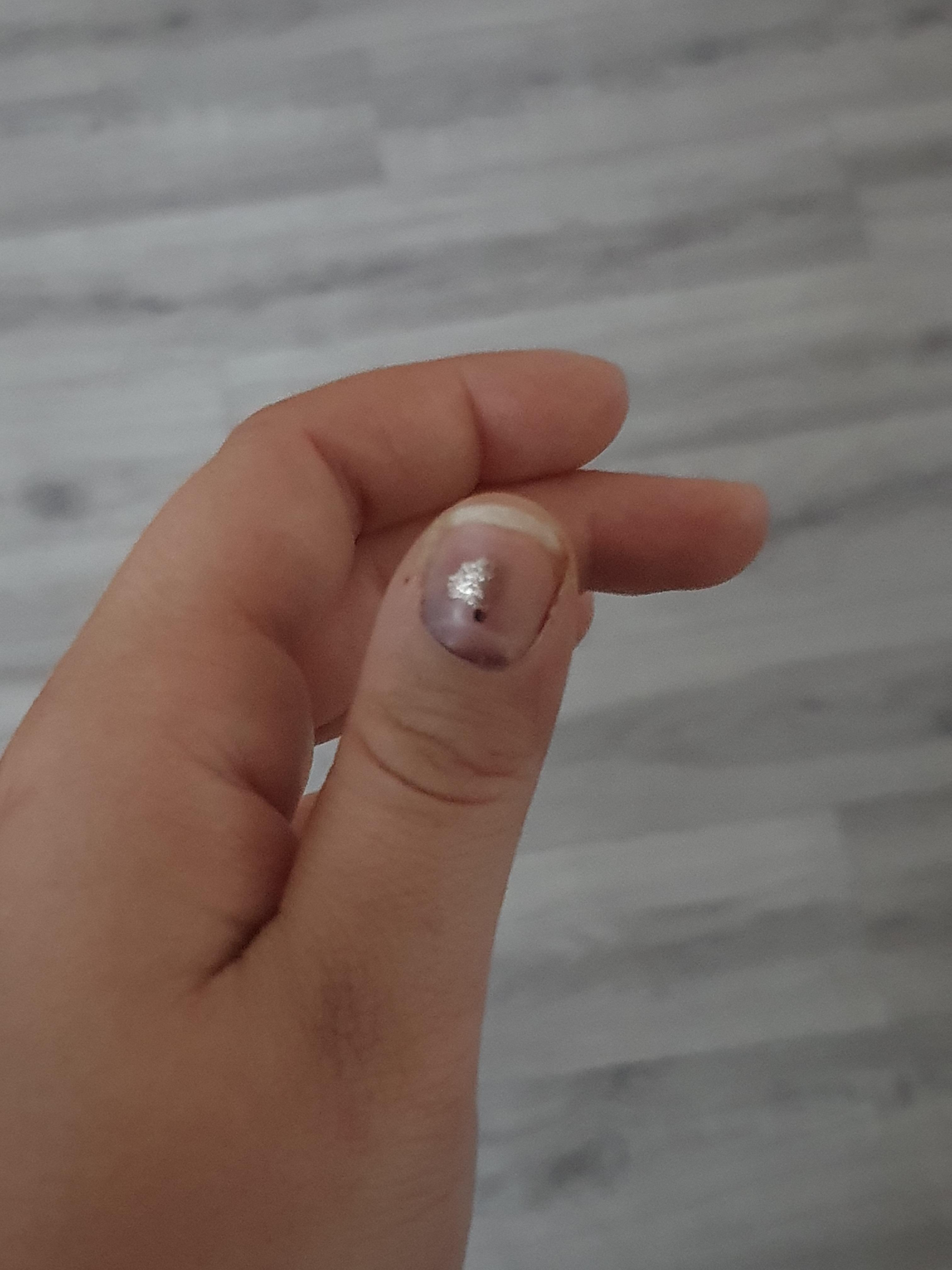 Wird mein Fingernagel abfallen? (Gesundheit und Medizin