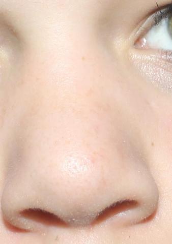 Meine Nase  ohne zusammenziehen - (Gesicht, Nase)