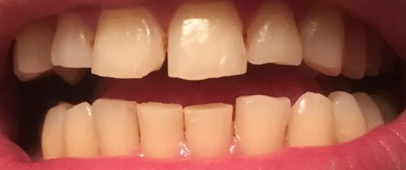 zähne - (Frauen, Männer, Zähne)