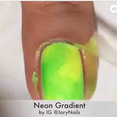 Gribok die Nägel die Behandlung vom Essig