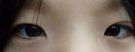Wo kann ich mir asiatische Augen operieren lassen? (Japan
