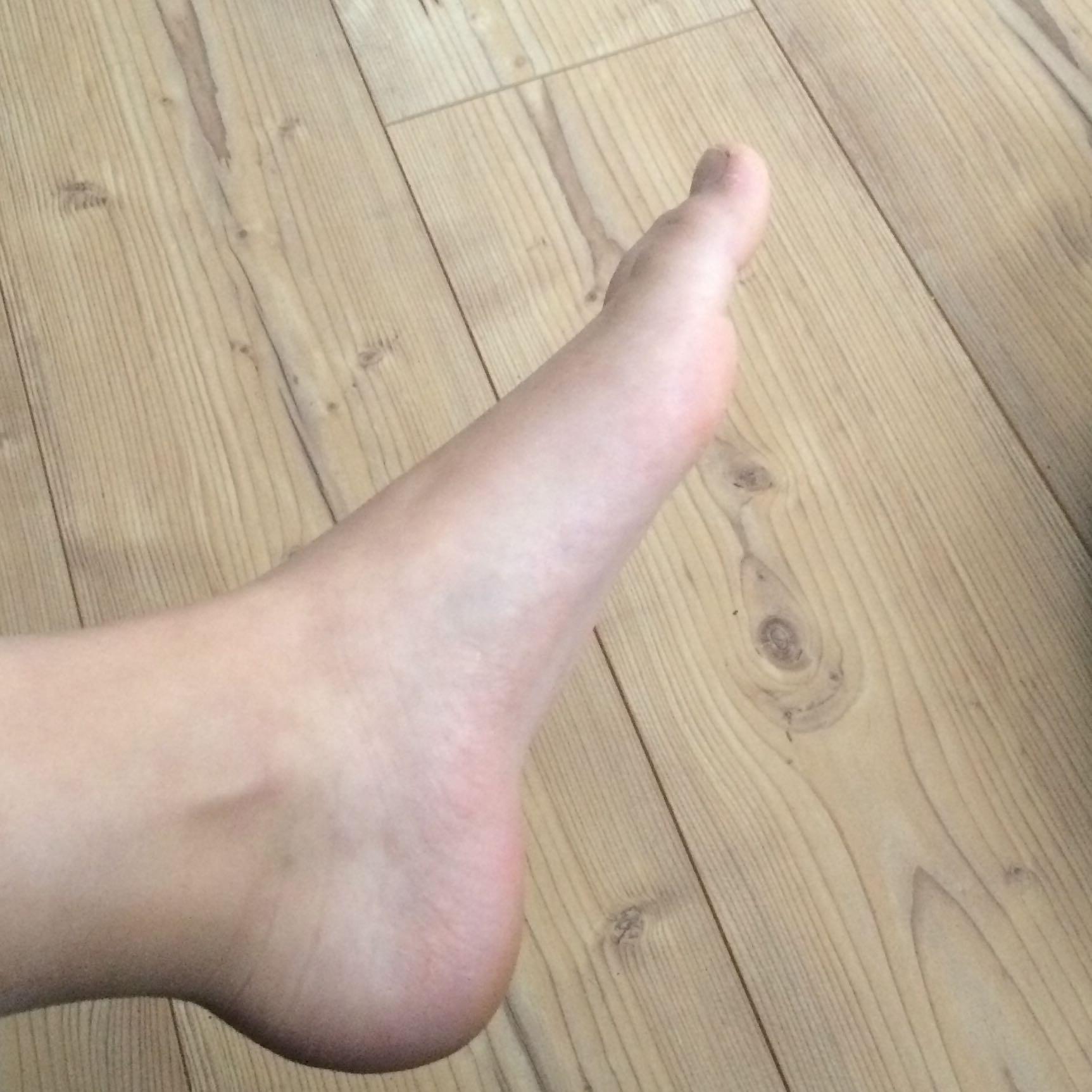 Wo sind meine Sprunggelenkbänder? (Füße, Beine)