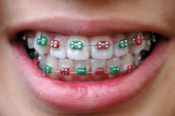 Wofür Gummis für Zahnspange? (Gummi)