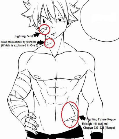 3 Narben  - (Anime, Fairy Tail, Natsu)