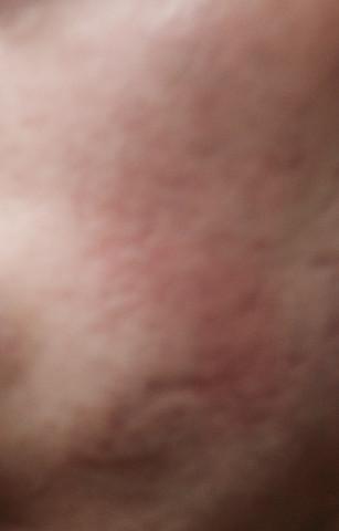Narben? - (Beauty, Gesicht, Haut Gesicht Linien)