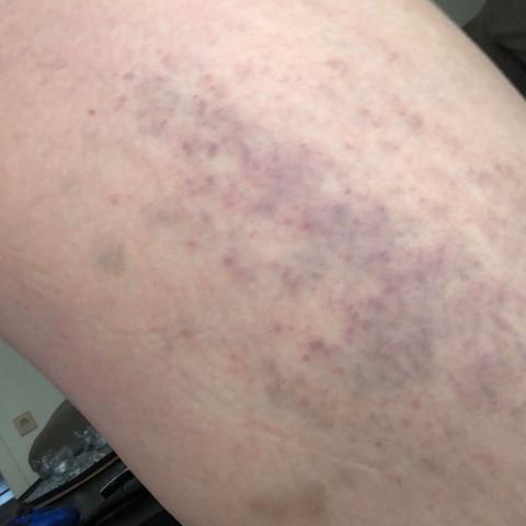 Blaue Flecken Beine