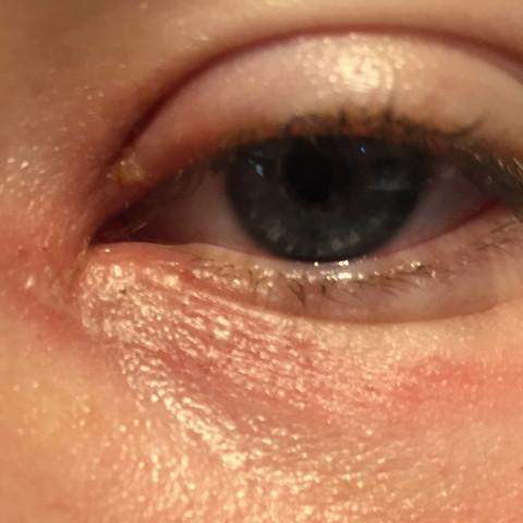 So sieht das Auge Offen aus mehr aufmachen kann ich nicht sonst tut es weh.  - (rot, Eiter, schmerzhaft)