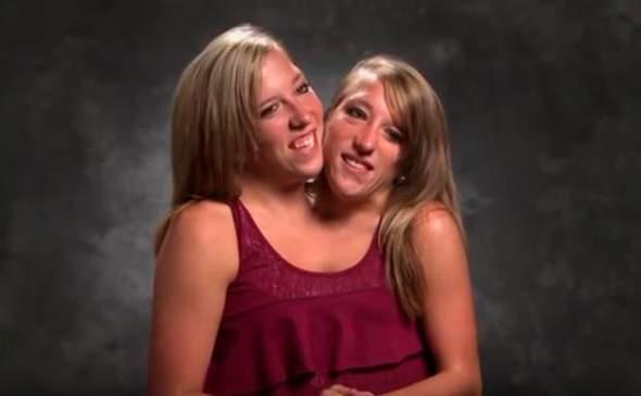 zwillingsschwestern teilen sich einen schwanz