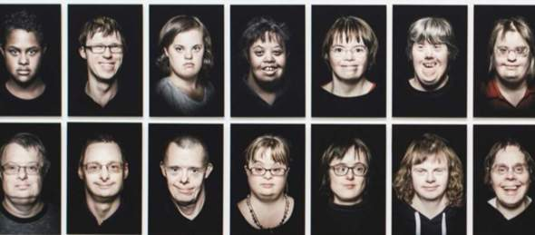 Would you have someone with Down Syndrome data?