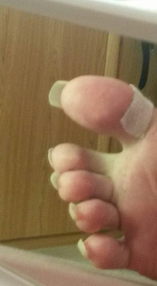 Die Behandlung beim Geschwür auf dem Finger neben dem Nagel