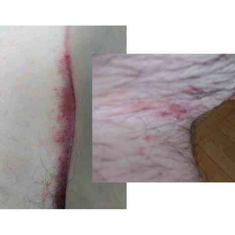 Links Pofalte, Rechts Bein/Schambereich - (Oberschenkel, Ausschlag, intim)