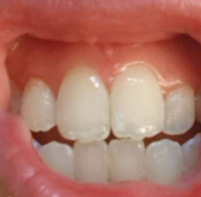 Weiße Punkte Zahnfleisch