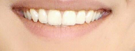 Zähne - (Zähne, Aussehen, aufhellen)
