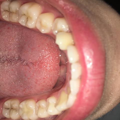Unterkiefer - (Zähne, Zahnarzt, bohren)