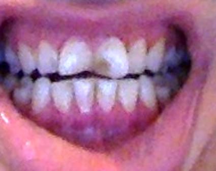 ggg - (Zähne, Cola)