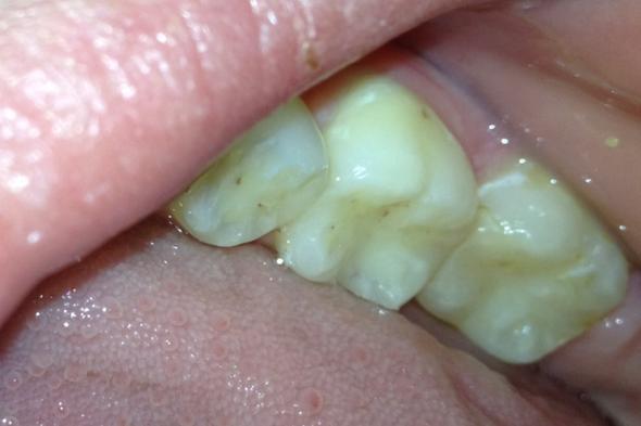 Flecken auf zähnen - (Zähne, Zahnspange)