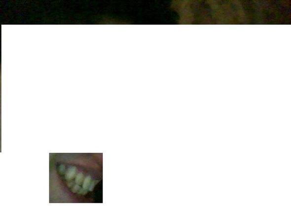 zahn - (Zähne, Zahnarzt, Zahnspange)