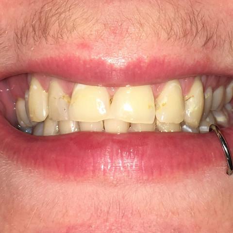 Zähne warum gelbe haben rothaarige Zahnpflege: Wie