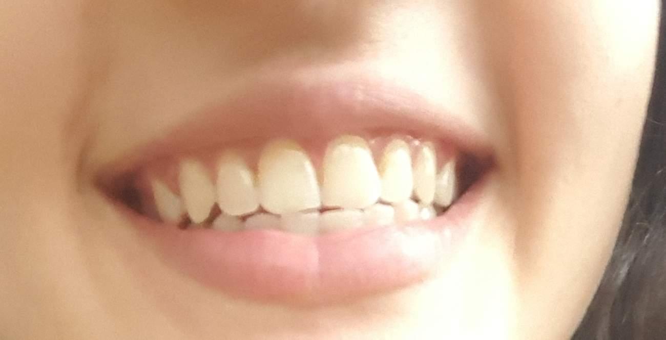 Zähne verschieben sich wieder nach der Zahnspange. Was