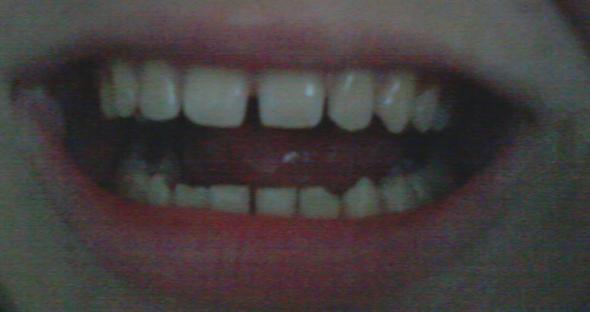 Meine Zähne - (Zähne, Zahnarzt)